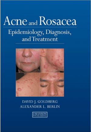 acne-rosacea-diagnosis-treatment