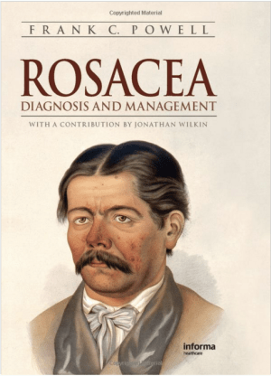 rosacea-diagnosis-management-frank-c-powell