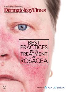 best-practice-treating-rosacea