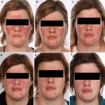 Severe rosacea treated with Accutane, Prednisolone, Azithromycin, Mirvaso, and Metrogel