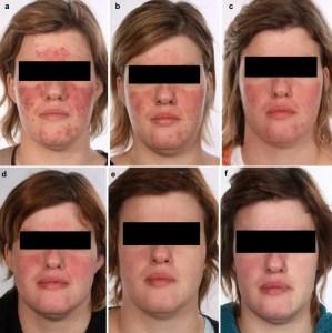 severe-rosacea-multiple-treatments