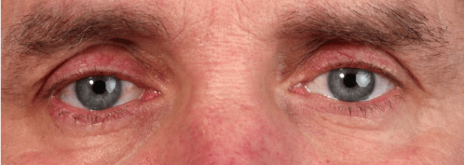 Soolantra for Ocular Rosacea