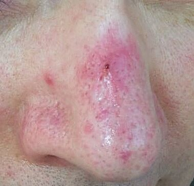 Rosacea Pictures Papules Pustules Red Nose And Acne Rosacea