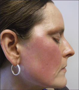 neurogenic-rosacea