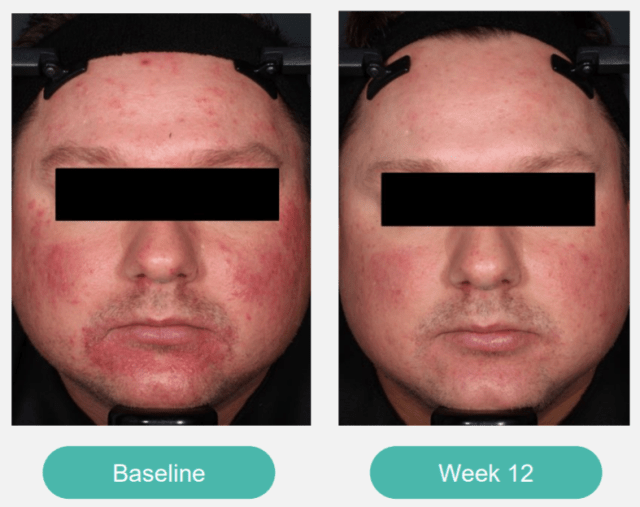 Zilxi Before And After Photos Rosacea Support Group