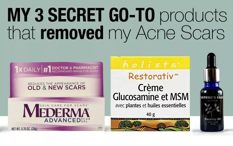 Acne Scar Removal A Must Read If You Have The Same Problem