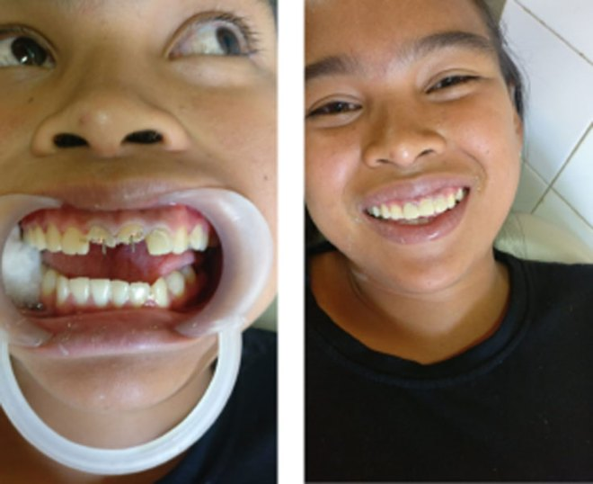 Young Nancy is all smiles after a dental correction.
