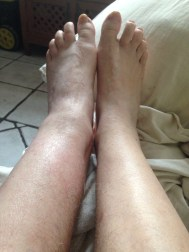 Nearly seven months later, still a swollen left ankle