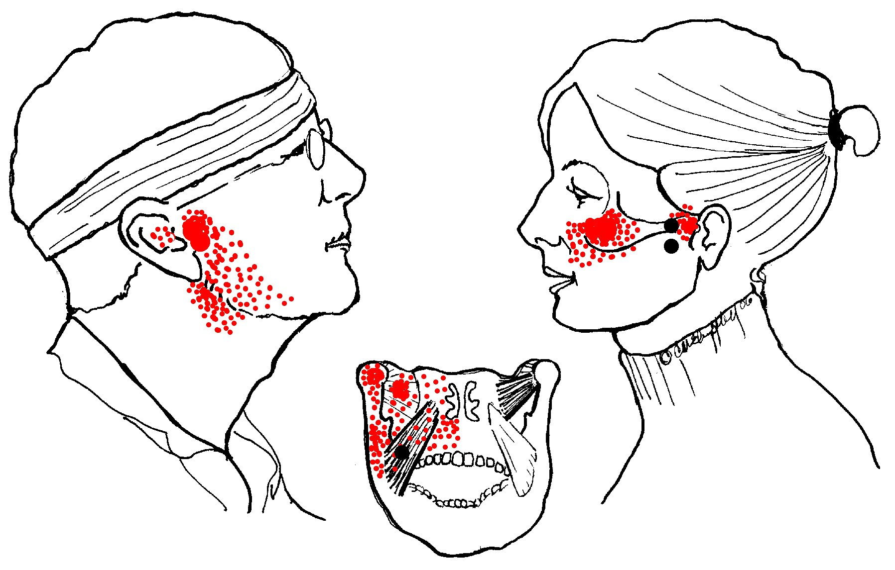 hight resolution of pterygoid pain