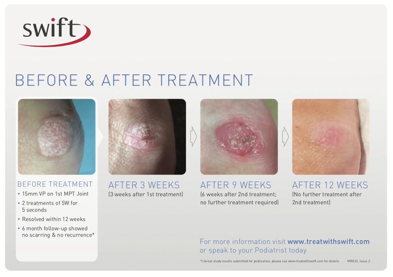 Two Swift Treatments