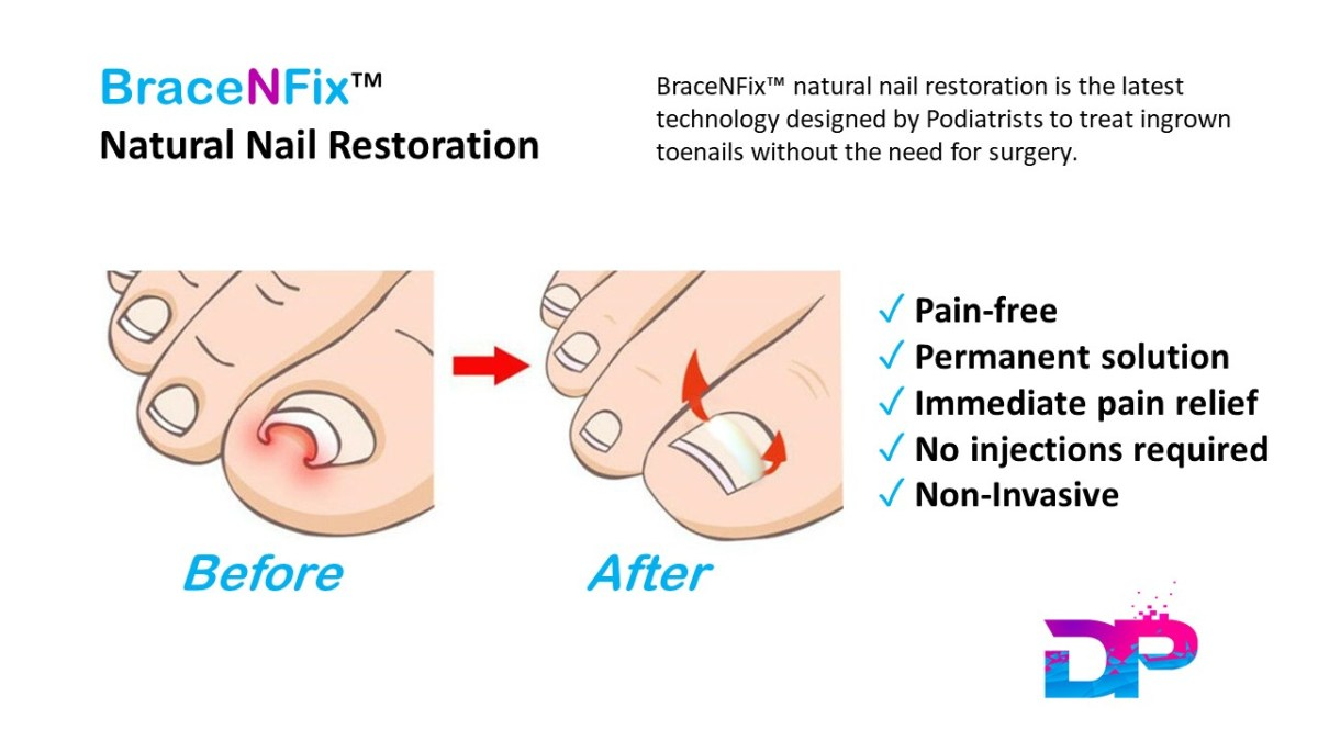 1 - Treat Ingrown And Involuted Toenails Without Surgery 1