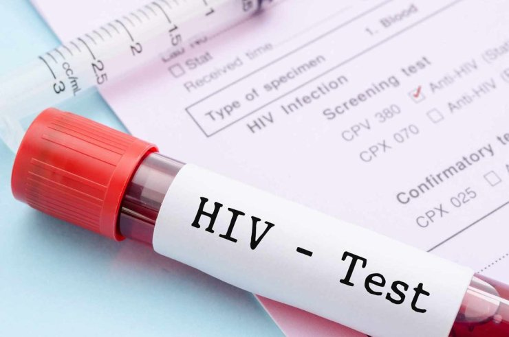 Nigerian Govt tasked on bridging gap in HIV testing