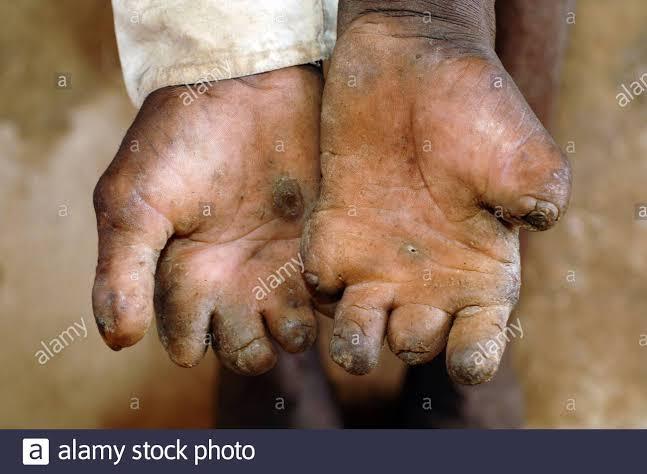 Senate seeks to establish hospital to treat leprosy, skin cancer, others