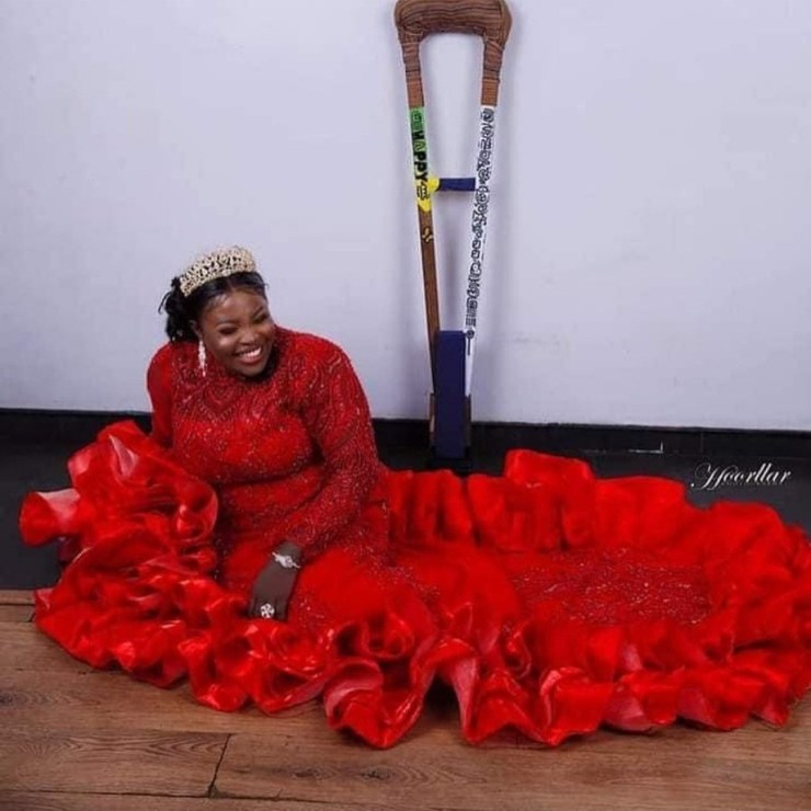 Amputee hawker who was raised N14m looks gorgeous for 27th birthday