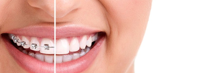 invisalign new westminster