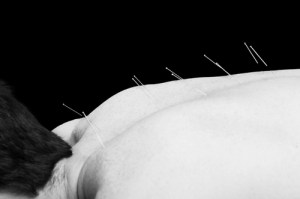 RPS GREENWICH - ACUPUNCTURE