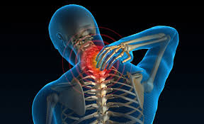 Neck Pain, Neck, Pain Management, Dr. Christian Whitney, RPS Greenwich