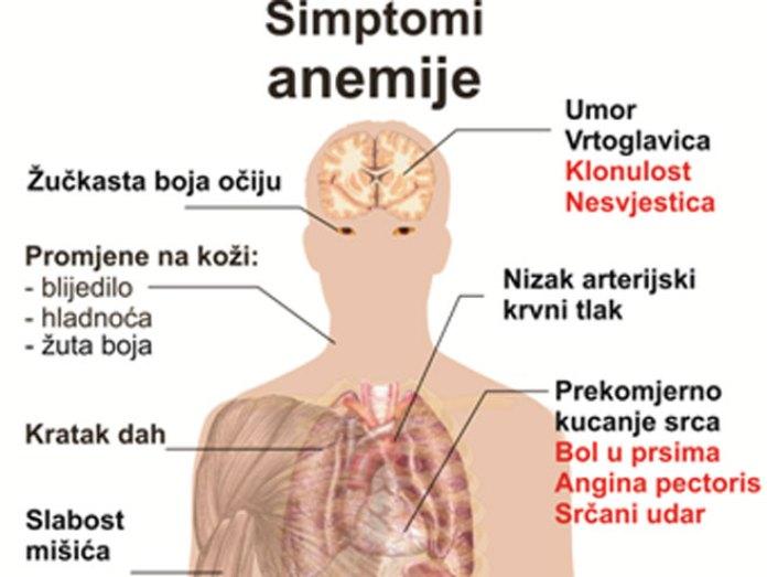 Rezultat slika za anemija