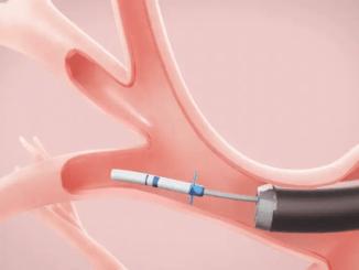 pulmonx zephyr valve