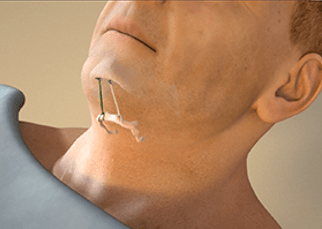 siesta hyoid suspension airlift