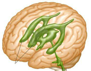 Асимметрия желудочков головного мозга у взрослых: причины и лечение. Асимметрия боковых желудочков: симптомы нарушений, причины, диагностика и лечение