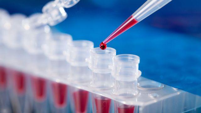 ПЦР, экспресс и реалии: как пройти тест на коронавирус и где его найти | Рубрика