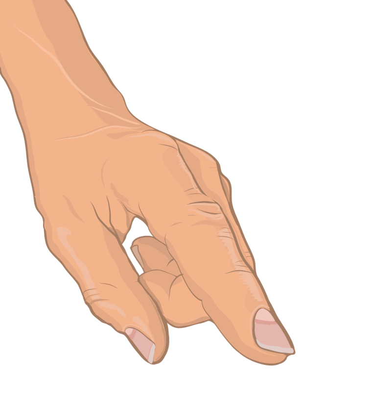 Medical Illustration - Anatomical drawing of human hand (vector graphic)