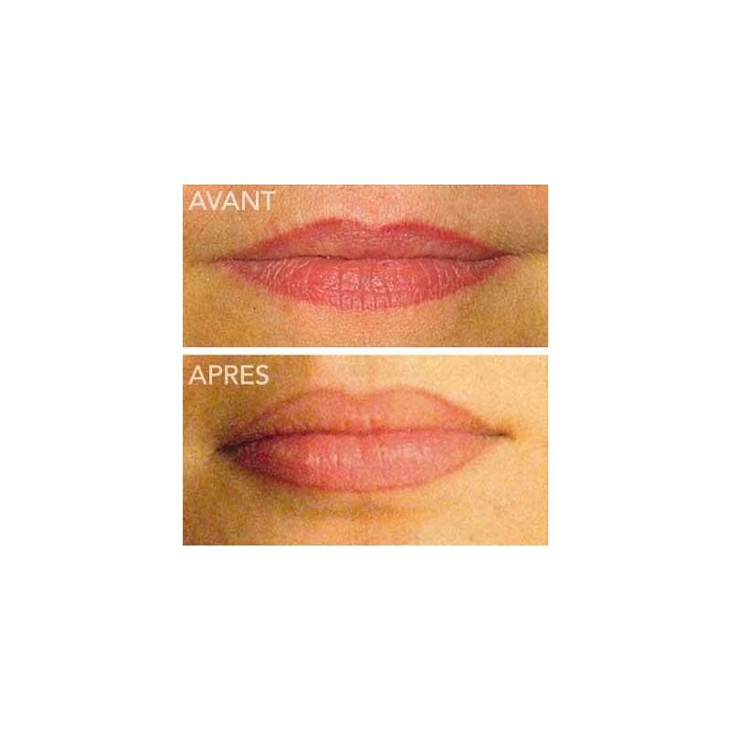 Tatouage Contour Des Lèvres à Paris En Maquillage Permanent