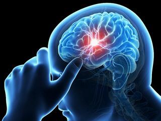 جلطات الدماغ