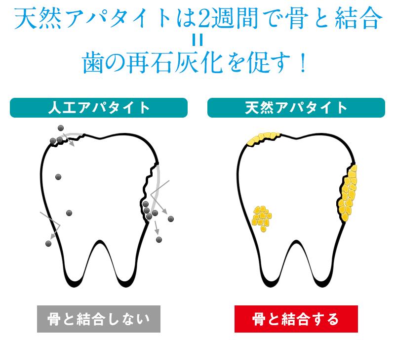 再石灰化を促進するブラッシングと「テトリス効果」 | 天然素材の化粧品・歯磨き粉 ルウ研究所