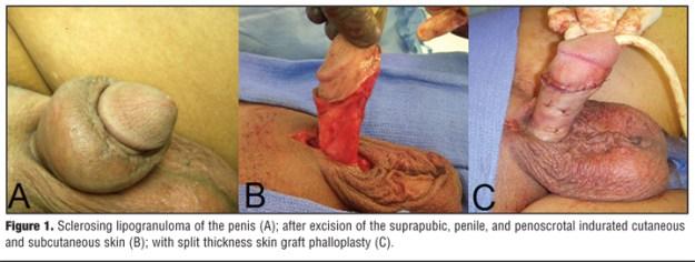 Proses pembedahan pembaikan zakar yang telah disuntik dengan minyak