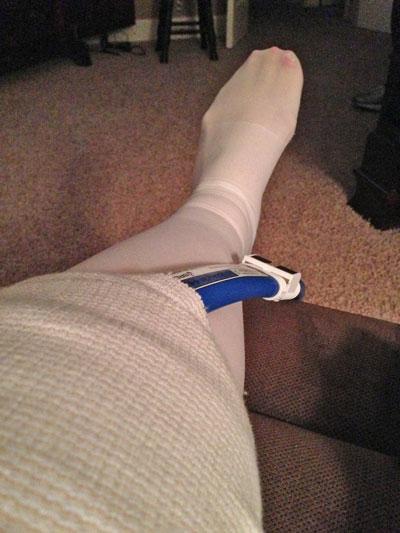 post-knee-surgery
