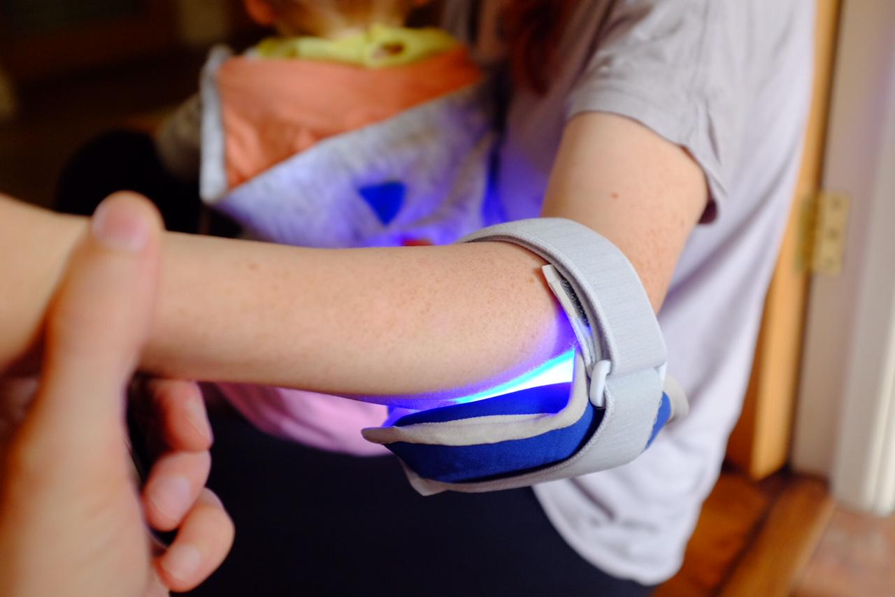 The Philips BlueControl for Plaque Psoriasis – REVIEW