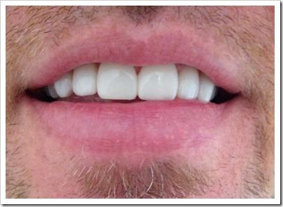 Dans New Teeth