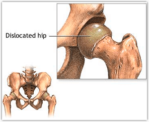Hip Dislocation - A Runner's Manual to Treating and ...