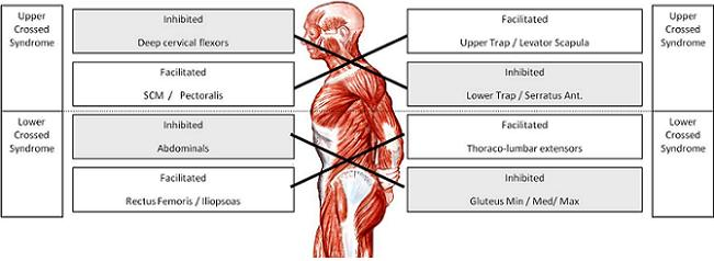 Understanding and Treating Upper and Lower Cross Syndrome