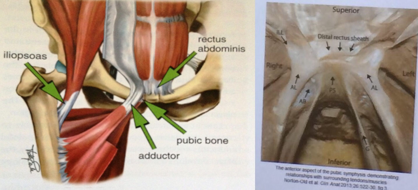 Athletic Trainers  Groin Pain, Treatment And Terminology