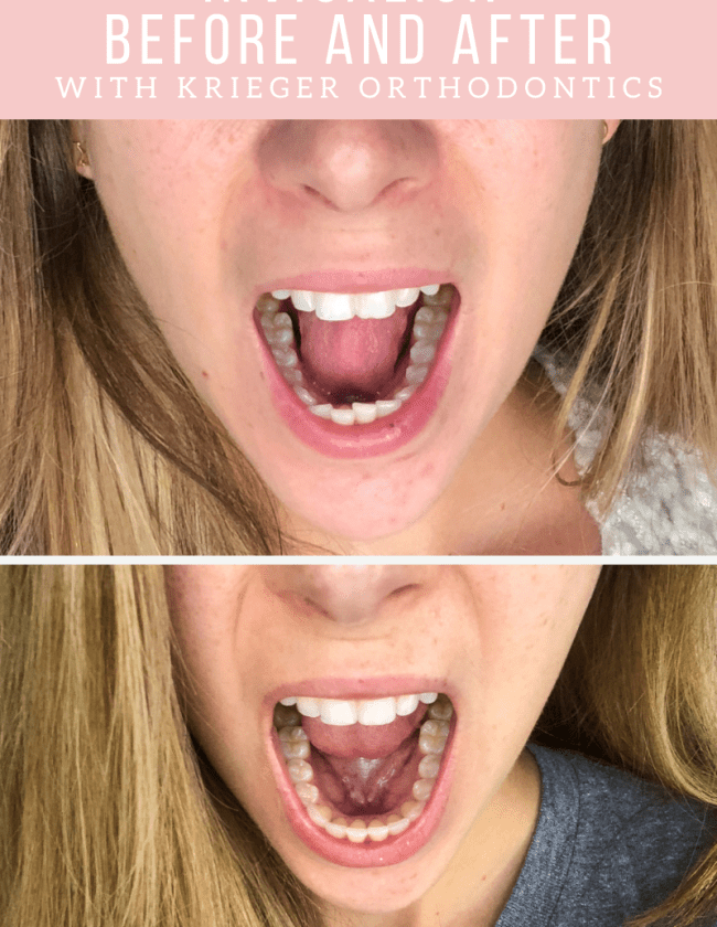 Invisalign Before and After with Krieger Orthodontics in Lewisville TX featured by top Dallas lifestyle blogger, Running in Heels.