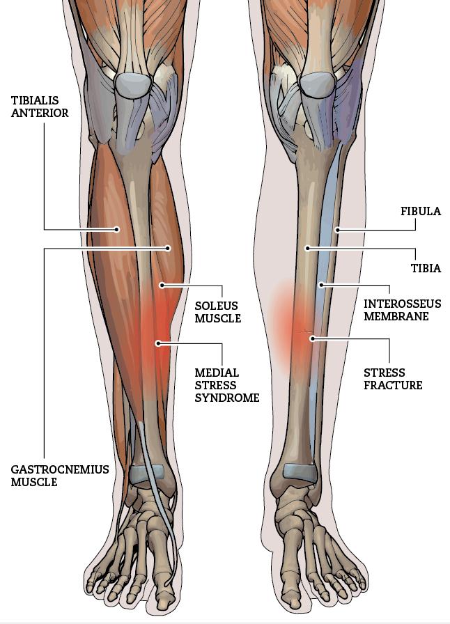diagram of tibia stress fracture transistor timer circuit tibial injuries canadian running magazine