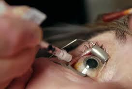oog injectie