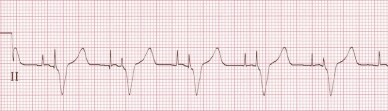 Atrial and Ventricle Pacer Spikes