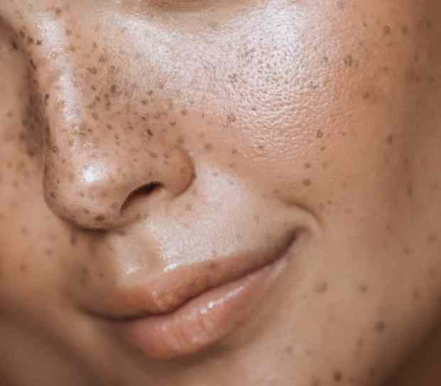 Image result for Melasma