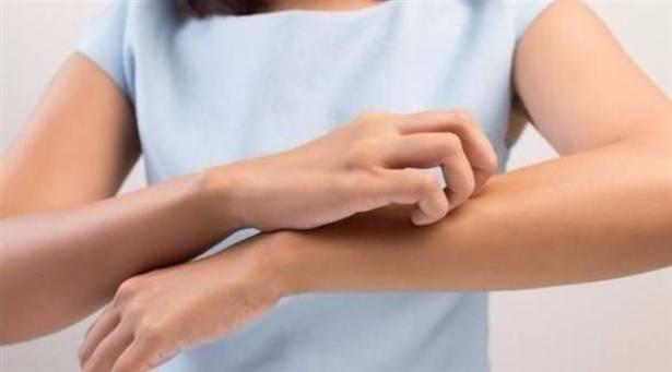 هكذا تحدد سبب نوبات التهاب الجلد العصبي!