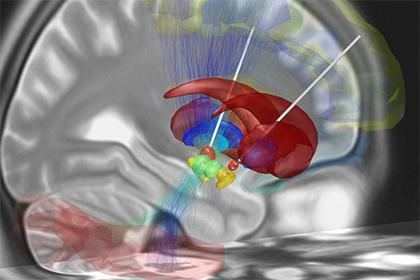 Буря на Сатурне, опасности глубокой стимуляции мозга, мозговые волны в лечении Альцгеймера, Заражение крови можно вылечить магнитом