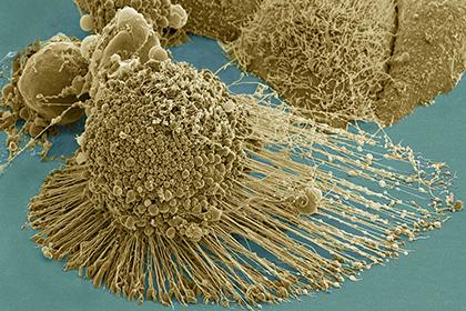 Найден способ состарить раковые опухоли