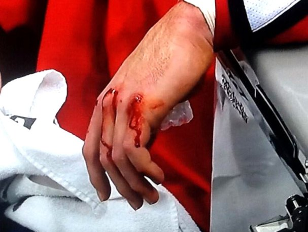 wilson-bloodies-knuckles2