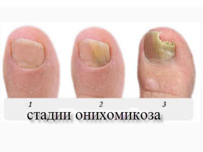 Медный купорос при лечении грибка на ногах
