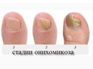 грибок ногтей на разных стадиях, фото