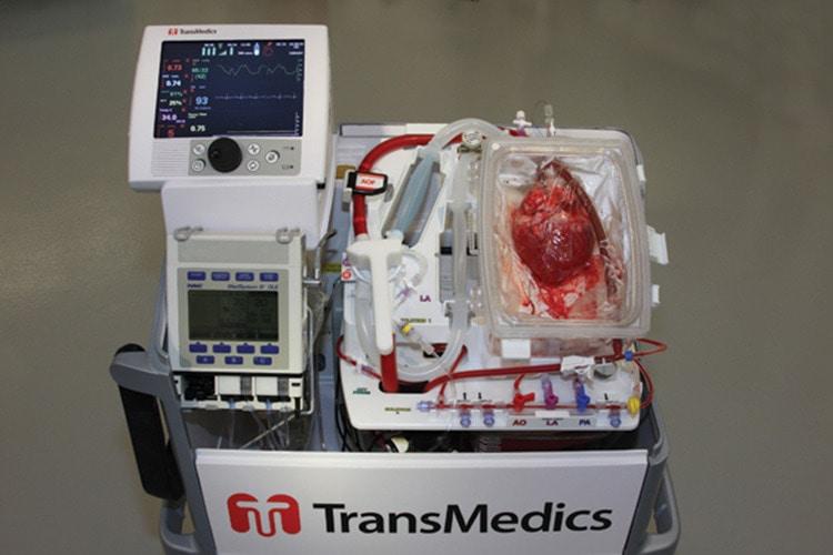 пересадка сердца от донора с остановкой кровообращения картинка
