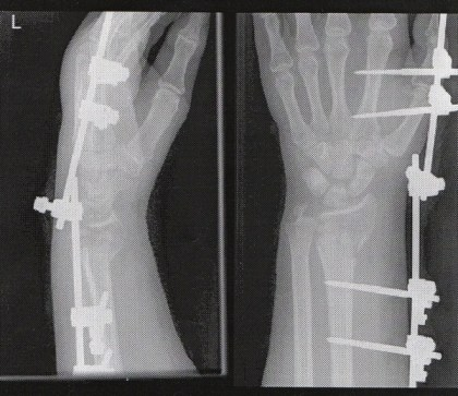 The Wrist Metal Pin Xray